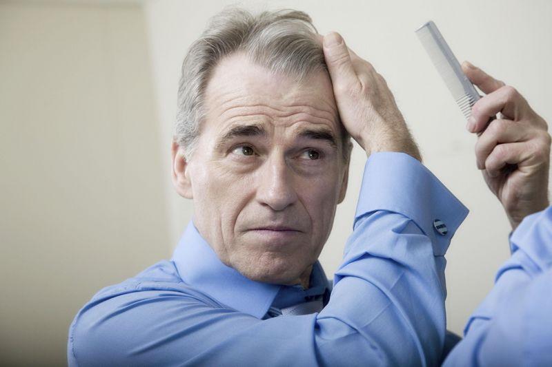 Acute Hair Loss