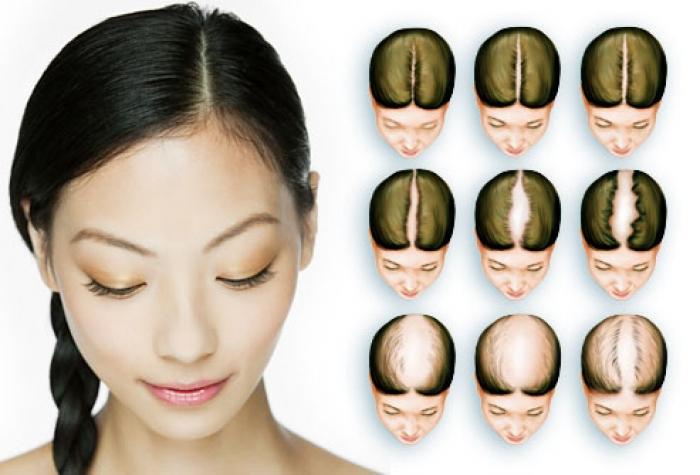female baldness